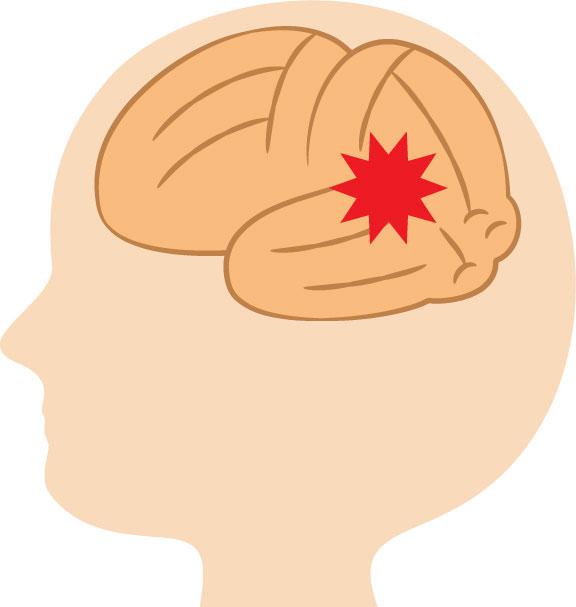 後頭部の頭痛が続く!原因と対処法について解説します
