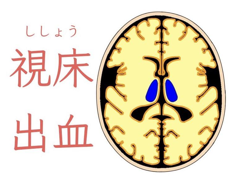 視床出血の症状と治療法について解説!