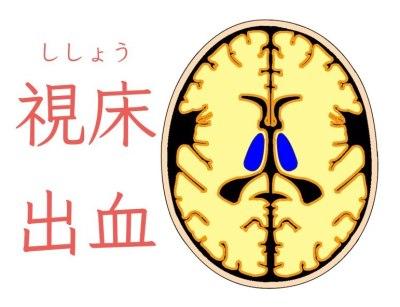 視床出血、脳出血