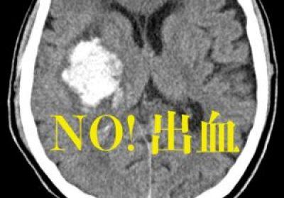 脳出血、脳卒中