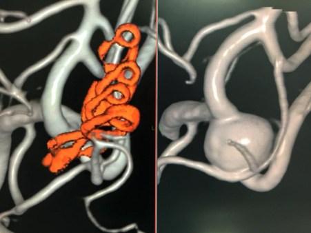 未破裂脳動脈瘤、クリッピング術