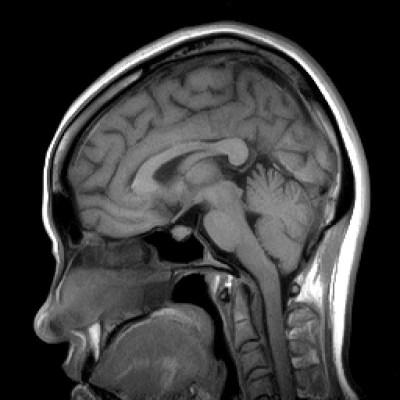 キアリ奇形、MRI