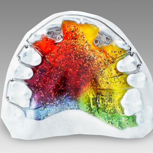Orthodontie 94 Choisy le Roi: Appareils fonctionels