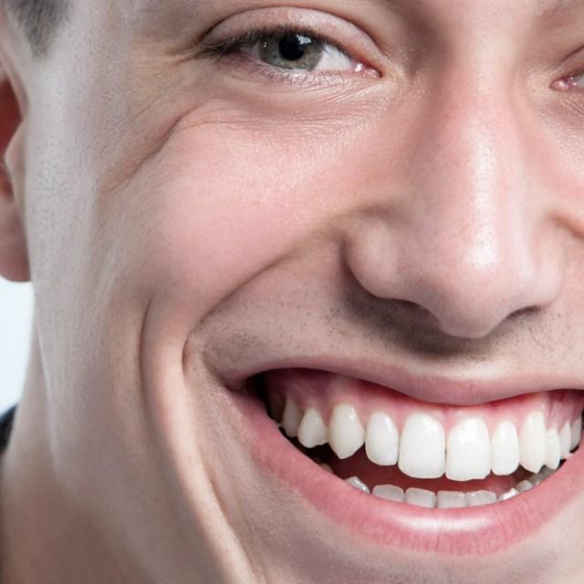 Orthodontie 94 Choisy Le Roi: Adulte souriant apres traitement orthodontique.