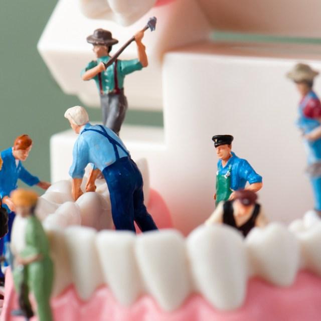 Orthodontie 94 Choisy le Roi Les activations