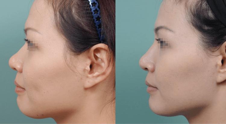用自體脂肪移植隆鼻,打造完美鼻型!