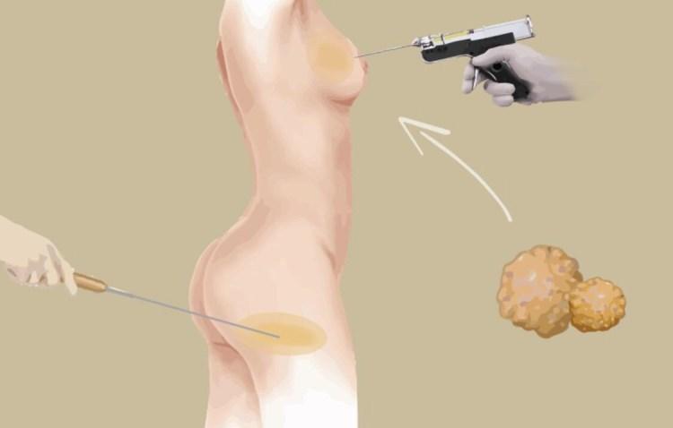 《周杰醫師's》抽脂補胸的安全原則跟手術方法大解密!