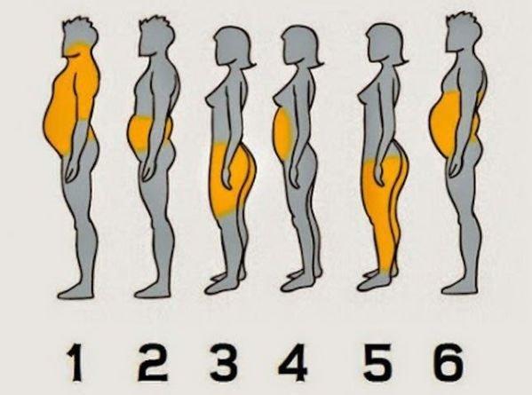 【大家都在問】懶得運動又愛吃,抽脂減肥行不行?