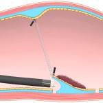 胃がんのESD(内視鏡的粘膜下層剥離術)に関する論文(S-Oクリップを用いた方法)を発表しました。