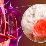 食道癌のまとめ記事