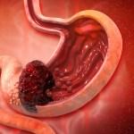 胃癌の初期症状、症状が起きるメカニズム