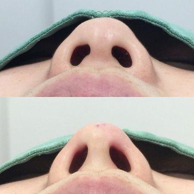 5分で終わる!切らない鼻中隔延長のビフォーアフター