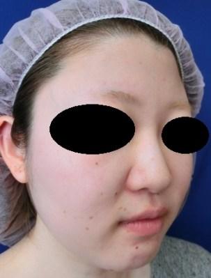 鼻筋はシリコンプロテーゼが一番優れています。鼻のシリコンプロテーゼのビフォーアフター