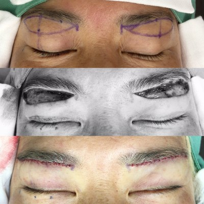 10歳の若返り、眉下切開法の工夫と術中経過。(#術中画像あり閲覧注意)