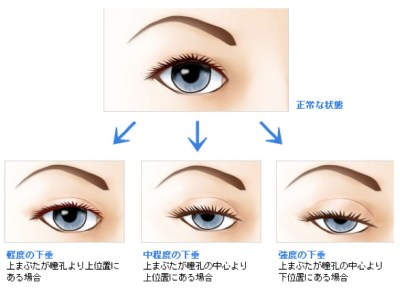 目の開きをよくするには、眼瞼下垂の手術が不可欠です。方法と受けた方の感想