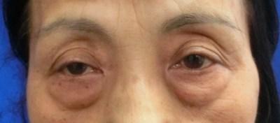 眼瞼下垂と上眼瞼の陥凹が強いケース