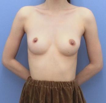 乳房の張りがなくなった方の脂肪注入豊胸のビフォーアフター