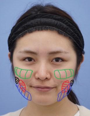 【顔の脂肪吸引の詳しい解説】脂肪吸引・バッカルファット除去・エラボトックスの組み合わせで小顔になったケース