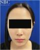 バレない小顔、若返り治療『バッカルファット除去』のビフォーアフター