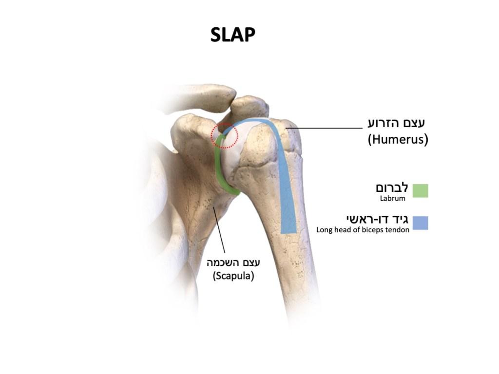 פגיעה בקומפלס לברום/גיד דו ראשי בכתף SLAP