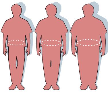 Trois silhouettes décrivant l'écart entre la silhouette normale (à gauche), le surpoids (au milieu) et l'obésité (à droite).