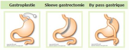La gastroplastie, la sleeve gastrectomie et le by pass gastrique sont les techniques de la chirurgie de l'obésité