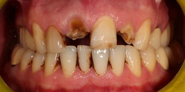 Металлокерамические коронки на передние зубы: изготовление ...