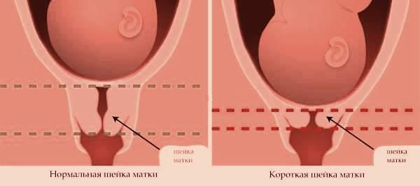 Конизация шейки матки и ее последствия, радиоволновая и ...