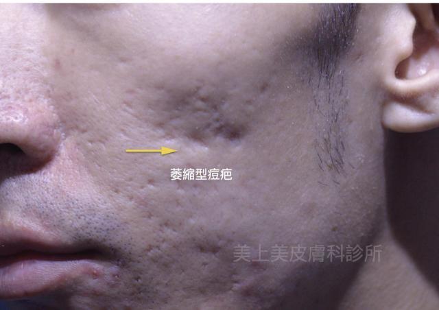 用填充物的方式來做痘疤治療是現在很普遍的方法,而且術後立即有效,恢復期短,是個很不錯的痘疤治療方式!
