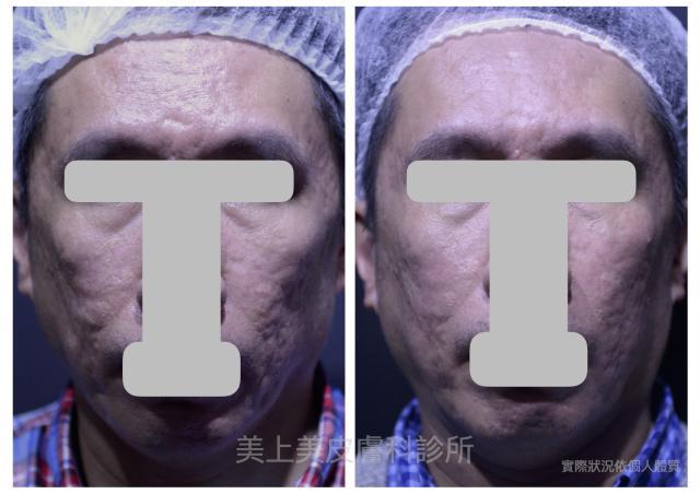 嚴重型痘疤該怎麼治療?只單靠施打雷射是不可能的!痘疤治療中的填充修補是你另一個選擇,專治嚴重型凹痘疤