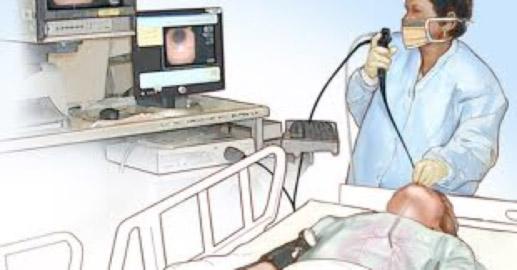broncoscopia-uti