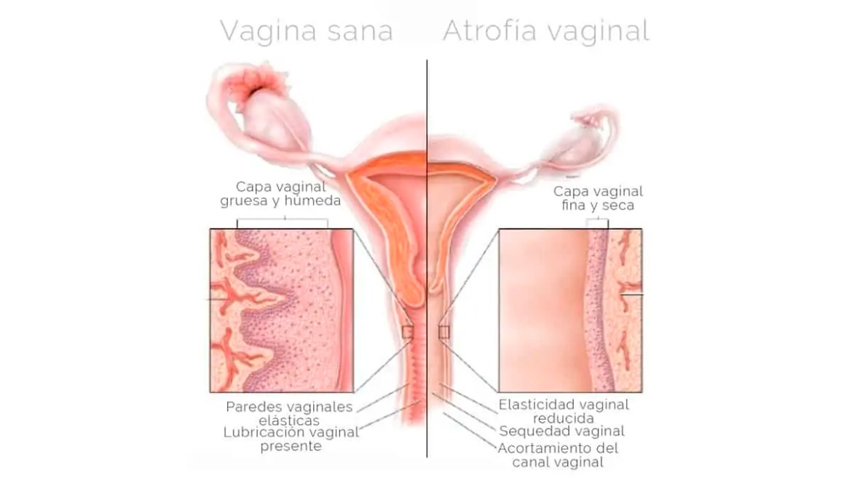 Atrofia Genital, Tratamiento en Zaragoza