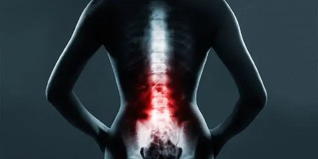 The Role of Emergency Radiology in Spinal Trauma | El Paso, TX Chiropractor