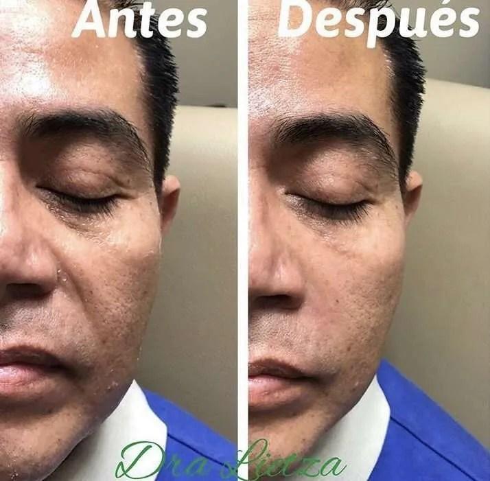 Rellenos faciales surcos nasogenianos