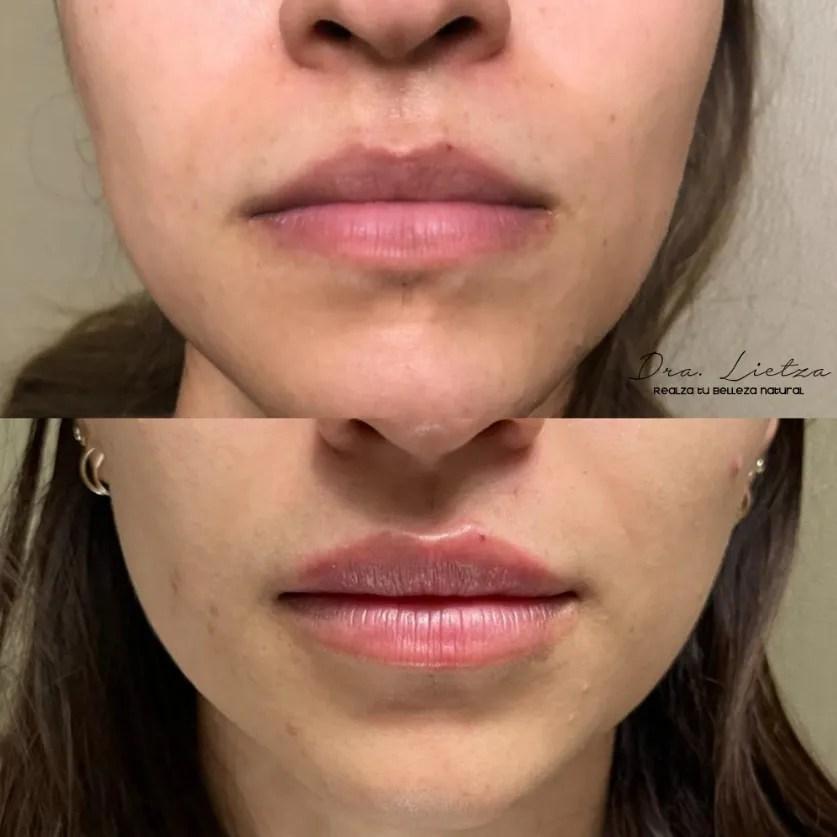 relleno de labios, acido hialuronico, ácido hialurónico, aumento de labios,