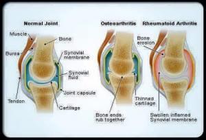 Mumie pentru a trata artrita
