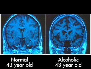 Normal brain vs. an alcoholic's brain.  Notice any similarities to the Alzheimer's brain pictures? Drinking only in moderation helps you prevent Alzheimer's disease.