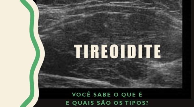 Tireoidites