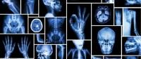 معلومة طبية أشعة اكس – Dental X-ray
