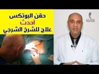 حقيقة حقن البوتكس لعلاج الشرخ الشرجي بدون جراحة  شاهد فيديو للحقن + معلومات كاملة