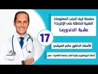 سلسلة كيف تتجنب المعلومات الطبية الخاطئة على الإنترنت. فيديو رقم 17: عشبة الدندورما