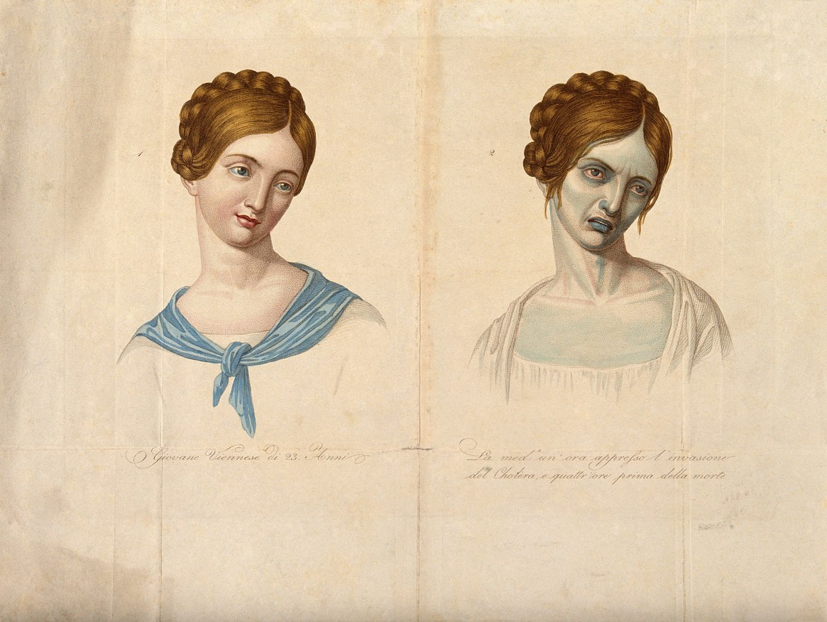 A Young Woman Before and After Cholera illustrates the radical difference between a healthy patient and an infected one. Cholera can kill in a matter of hours, so in the course of a day, this young woman could undergo this dramatic physical change before expiring. Artist Unknown, (1831), Courtesy of Wellcome Collection.