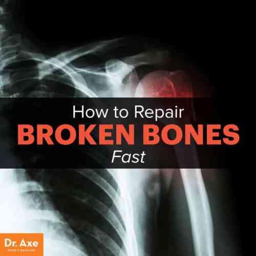 How to repair broken bones - Dr.Axe