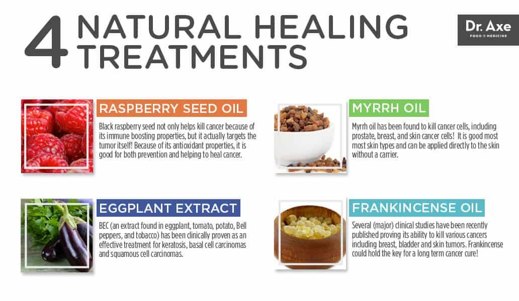 Top 5 Skin Cancer Symptoms & 4 Natural Treatments