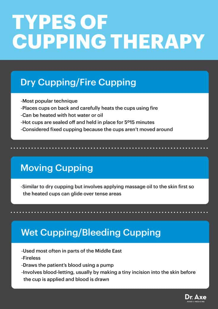 Types of cupping - Dr. Axe