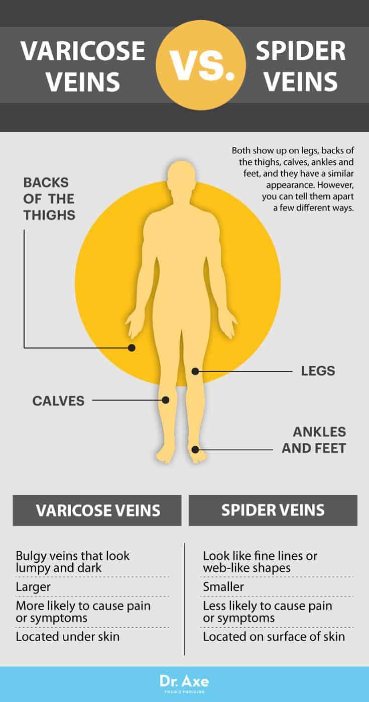 Varicose veins vs. spider veins - Dr. Axe