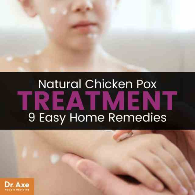 Chicken pox treatment - Dr. Axe