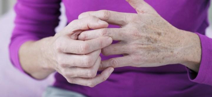 Psoriatic arthritis - Dr. Axe