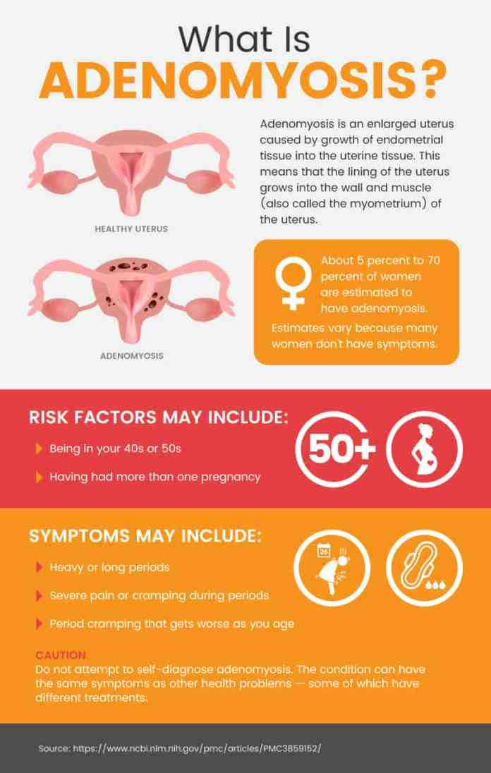 What is adenomyosis? - Dr. Axe