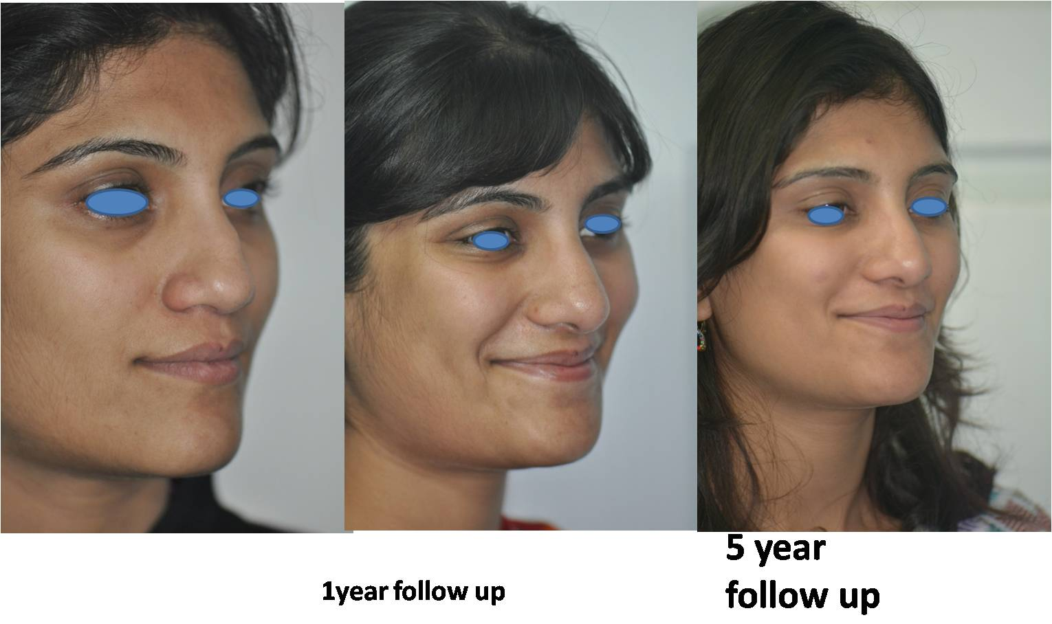 Swelling After Revision Rhinoplasty Photos
